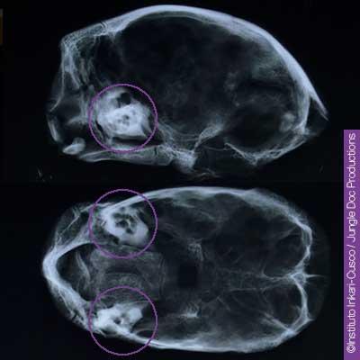 Conduit auditif des têtes momifiées