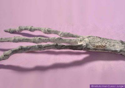 Main tridactyle avec un implant métallique