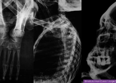 Maria's X-Rays
