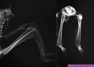 Radiographies de Victoria