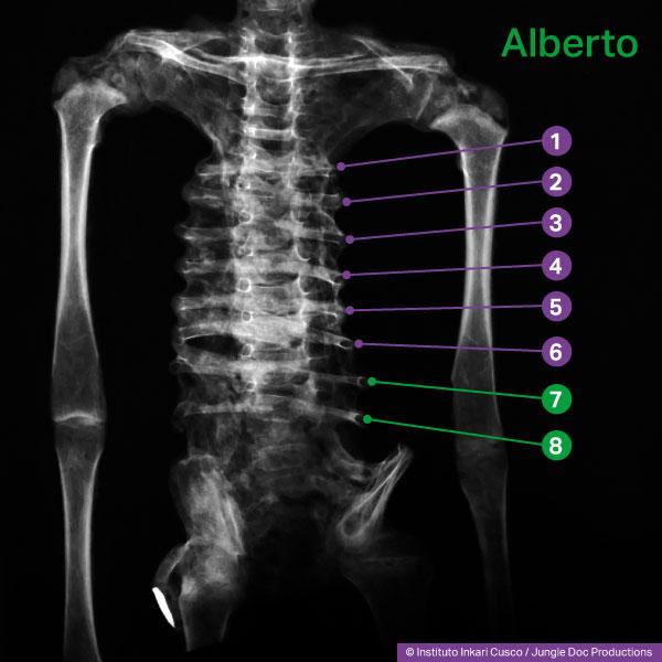 Radiographie de Alberto, humanoïde reptilien