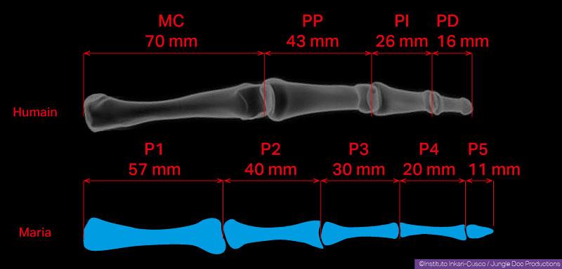 Scale comparation of a human hand ring-finger (top) and Maria's « inside» finger (bottom). MC: metacarpus - PP: proximal phalanx - PI: intermediate phalanx - PD: distal phalanx -P1 ... 5: phalanges 1 to 5