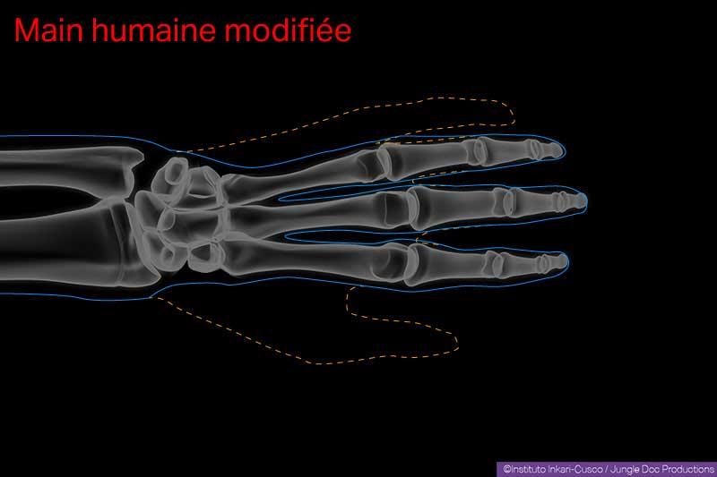 Main humaine modifiée. En pointillé orange, la forme extérieure de la « main originale ». En trait plein bleu, la forme extérieure de la « main modifiée ».
