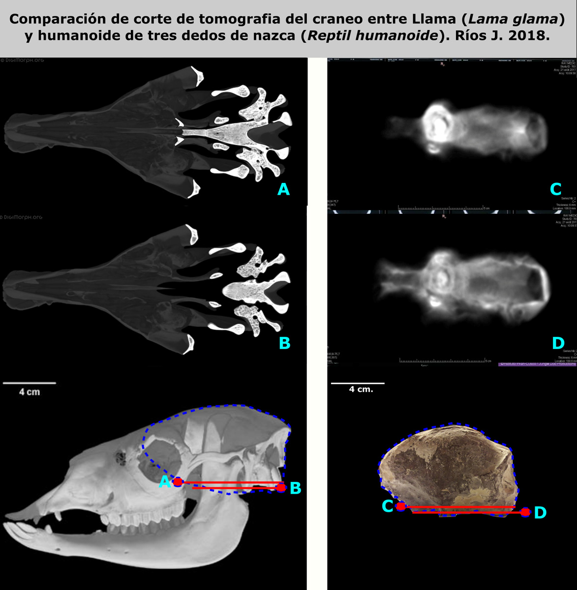 Comparison of tomographic sections of skulls (scanner images) between the Lama (Lama glama) and the three-fingered Nasca humanoid (Humanoid Reptile). Rios J. 2018