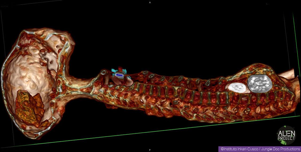 06-josefina-vertebres