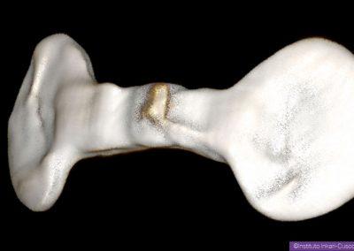 09-josefina-implant-seul