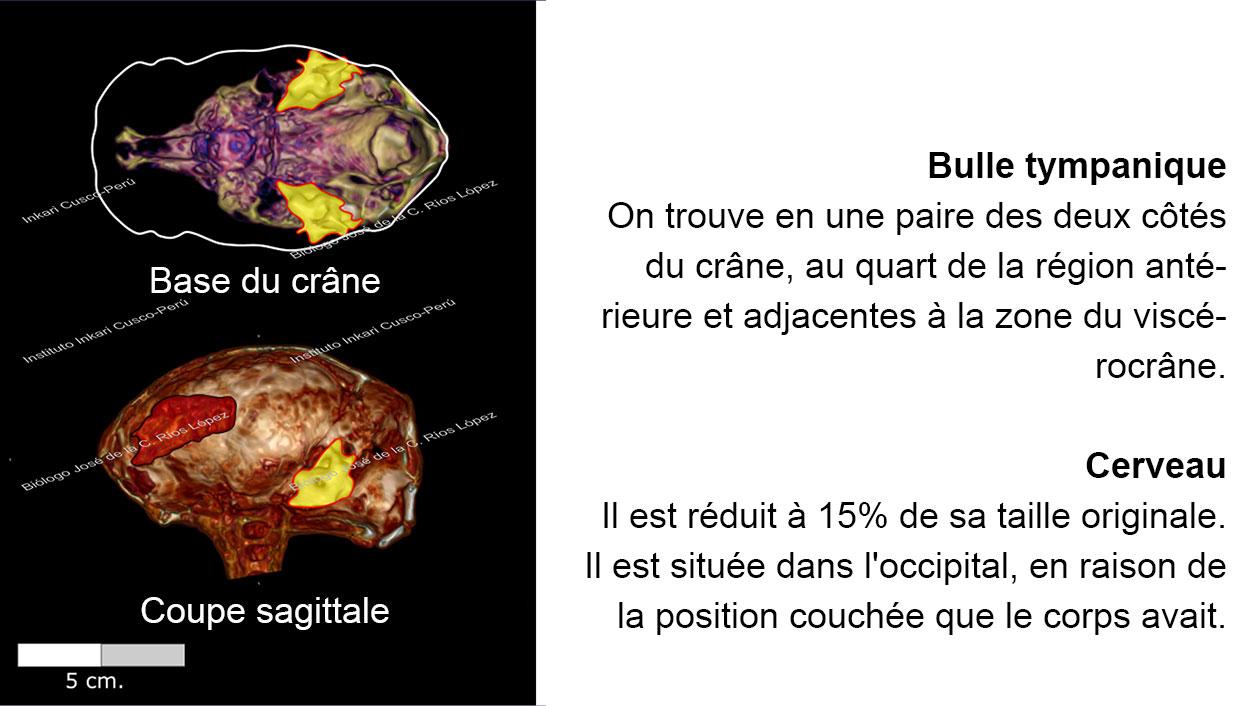 Bulle tympanique et cerveau