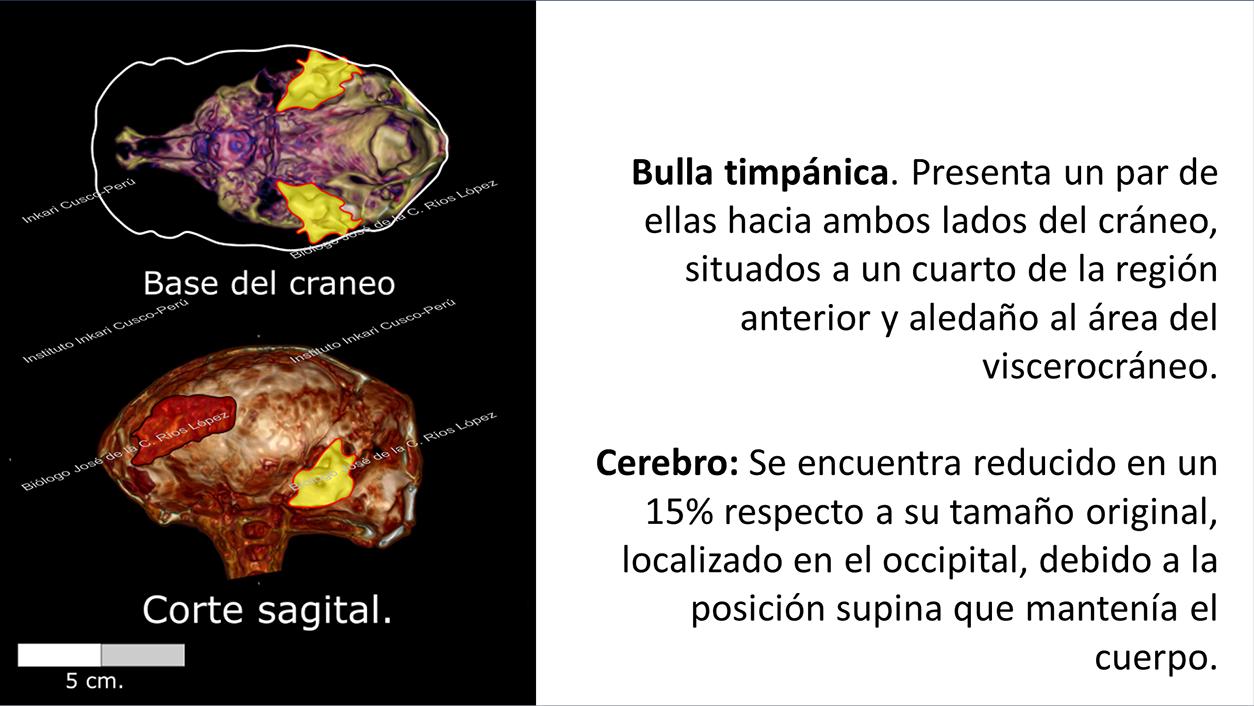 Bulla timpánica y cerebro