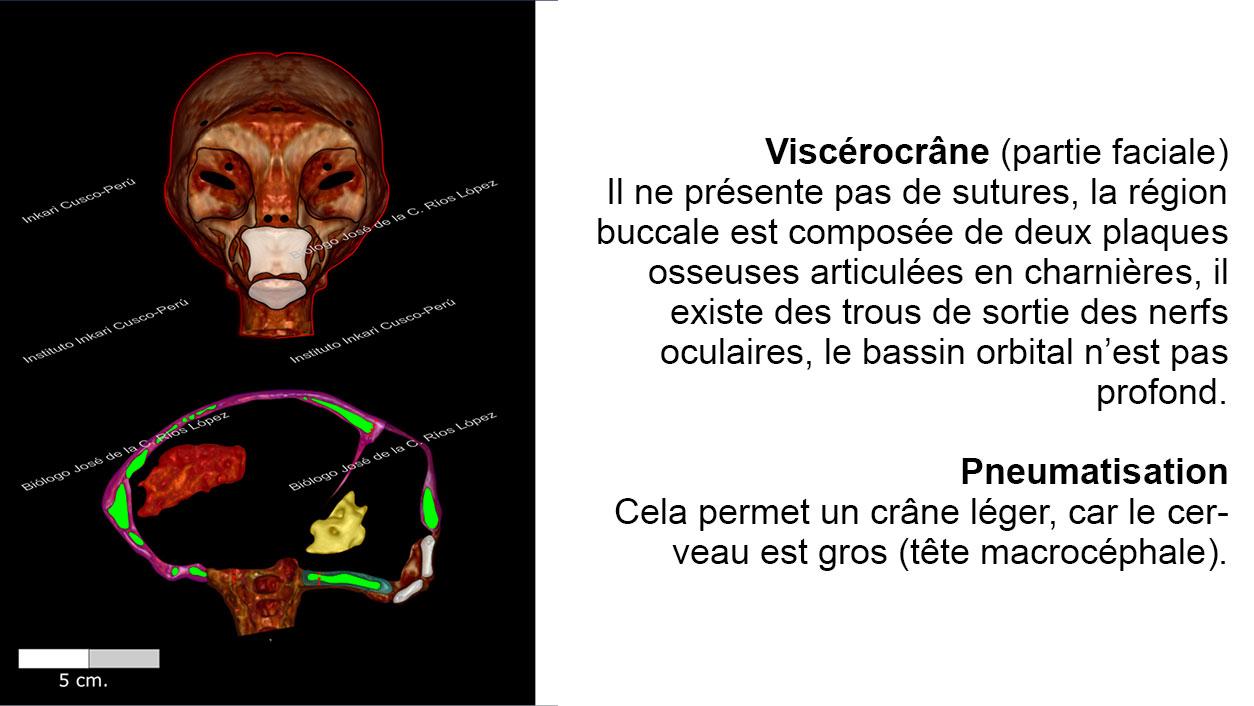 Viscérocrâne et pneumatisation