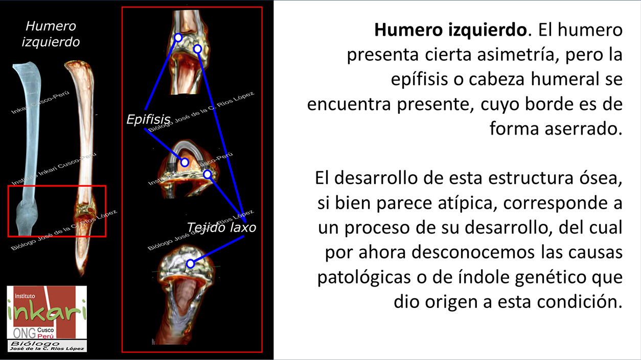 Humero izquierdo