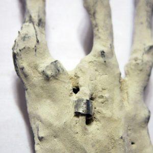 Implant métallique annulaire d'une main tridactyle