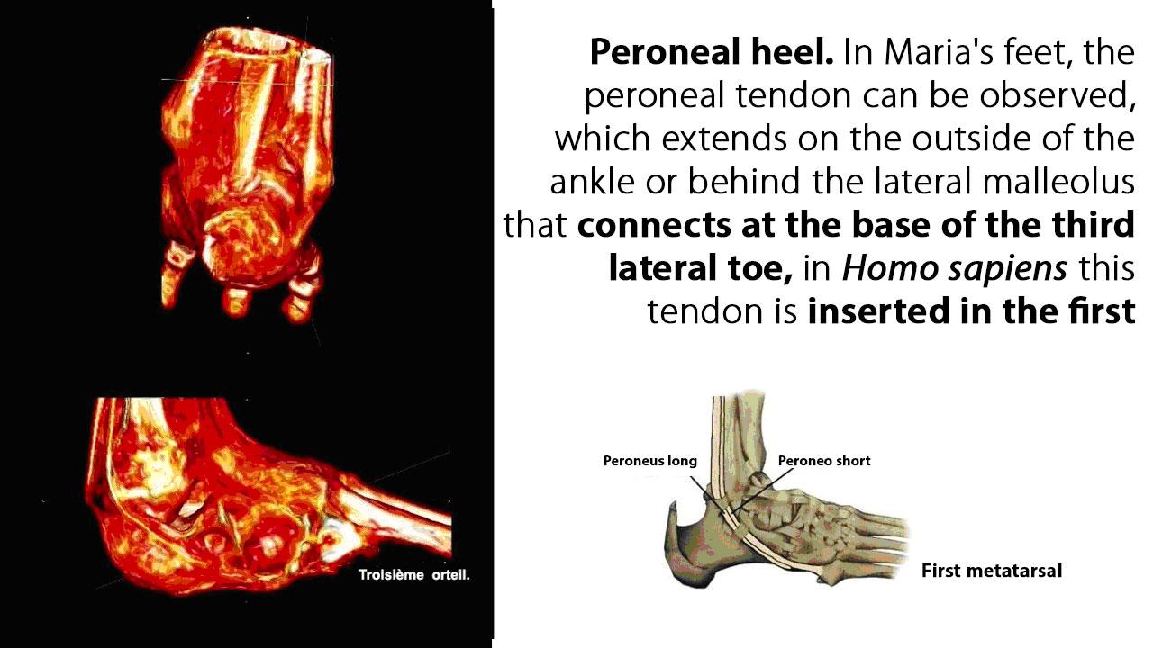 Peroneal heel