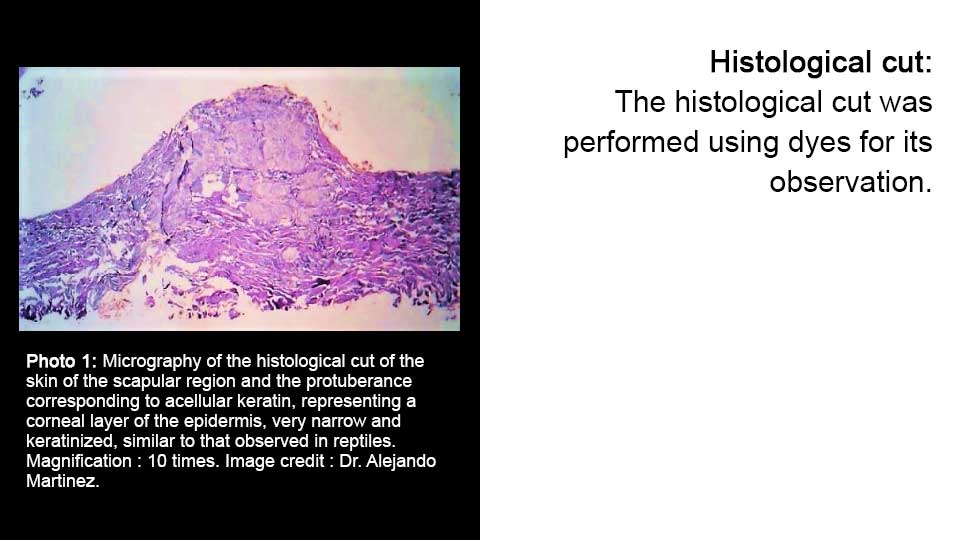 Histology cut
