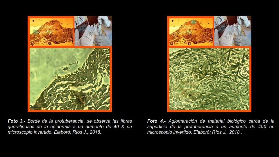 Borde de la protuberancia con fibras de queratinosas