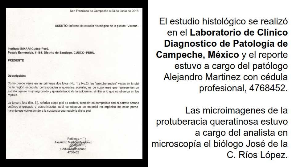 Estudio histológico realizó en el Laboratorio de Clínico Disgnostico de Patología de Campeche, México
