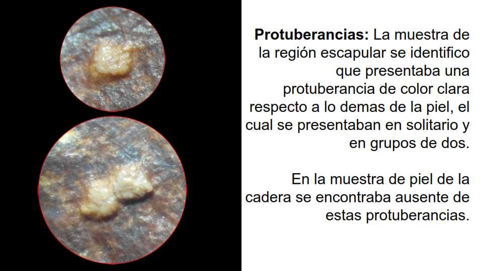 Protuberancias
