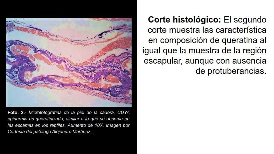 Corte histológico