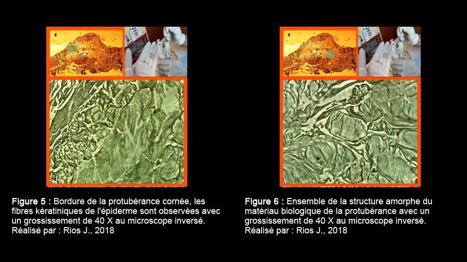 Observation des protubérances au microscope inversé