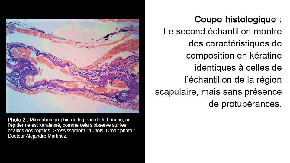 Coupe histologique