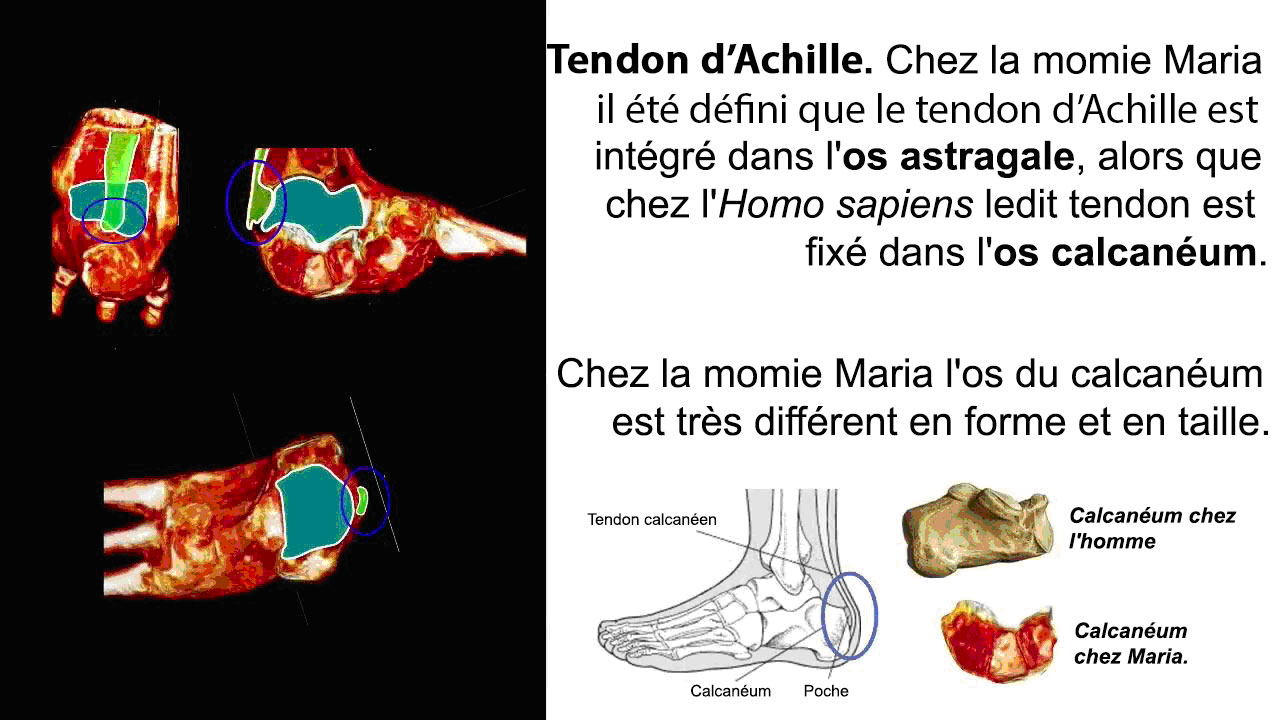 Maria : tendon d'Achille